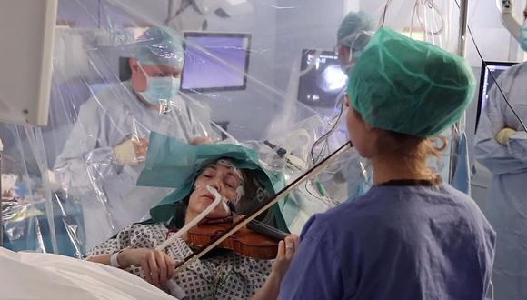 Una violinista ayudó a los médicos a no dañar una importante zona de su cerebro tocando su instrumento durante la operación para extraerle un tumor, anunció el hospital King's College de Londres. (Foto: AFP)