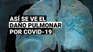 Video de realidad virtual revela cómo el coronavirus afecta a los pulmones