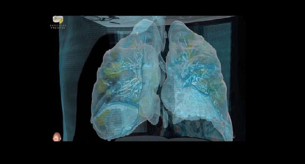 Así daña el coronavirus a nuestros pulmones. (Foto: Captura NowThis News)