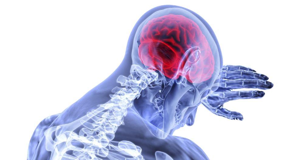 El glioblastoma multiforme (GBM) es el tumor cerebral más común y letal. (Referencial - Pixabay)