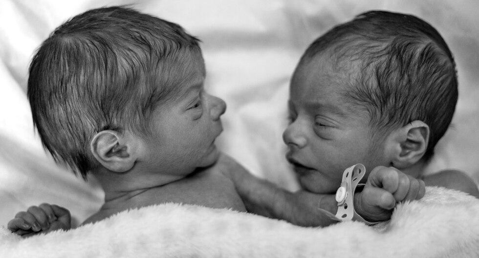 Si hablamos de los gemelos, el vínculo especial que comparten desde su formación en el vientre es algo completamente inexplicable. (Foto: Pexels/Referencial)