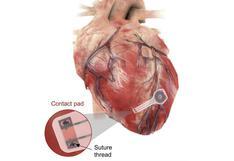 El marcapasos temporal que se disuelve en el cuerpo después de regular el ritmo cardíaco