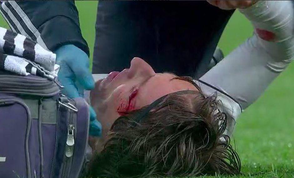 Real Madrid vs. Sevilla: Modric sufrió corte en la cabeza tras este choque. (Foto: captura)