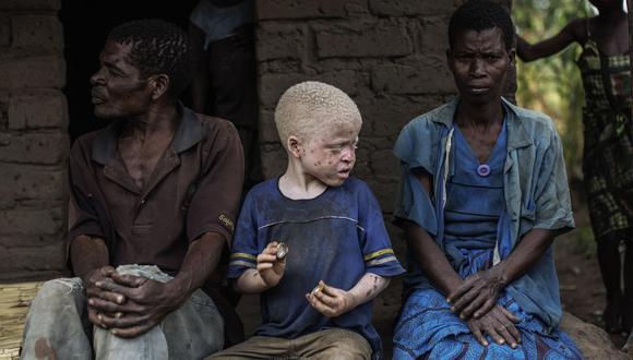 Sudáfrica: Curandero mató a una persona albina por un rito