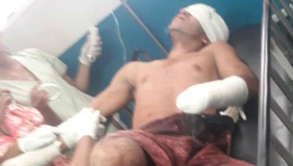 Mutilaron las manos, sacaron los ojos y cortaron la lengua a soldado en mina de Venezuela. Foto: Twitter @PableOstos