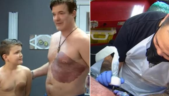Derek Prue Sr. se hizo un tatuaje para copiar la mancha de nacimiento de su hijo. (Foto: Henry Smith / YouTube)