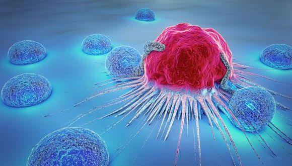 La supervivencia al cáncer ha aumentado mucho en la mayoría de países ricos. (Foto: Getty)