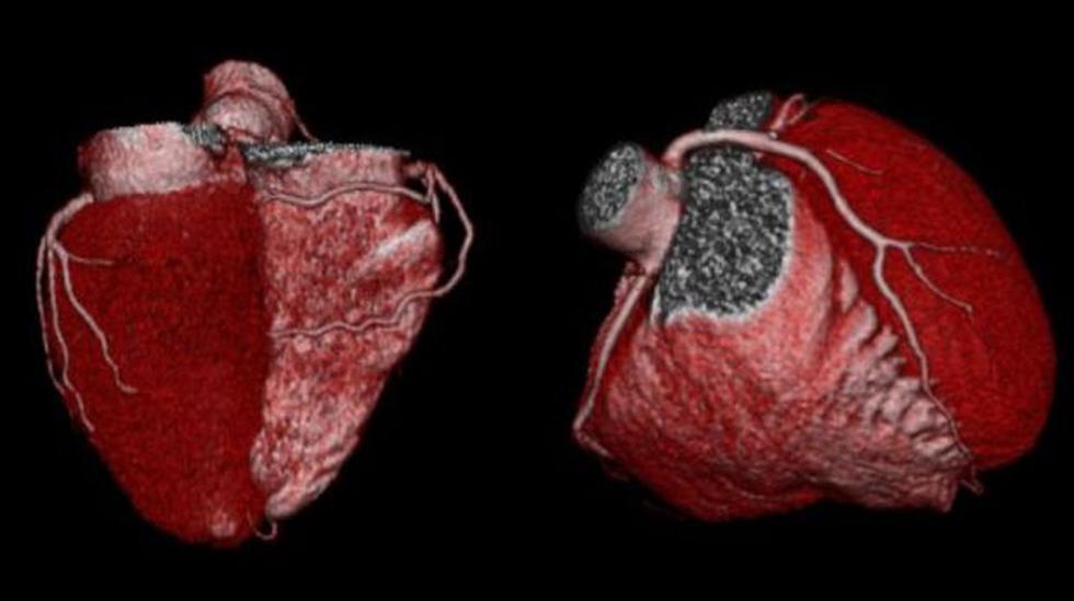 Sepa cómo afrontar los males cardíacos - 2
