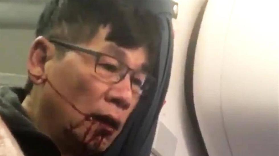 David Dao, el pasajero que fue retirado violentamente de su asiento en un vuelo de United Airlines, demandará a la aerolinea.  (Foto:Captura)