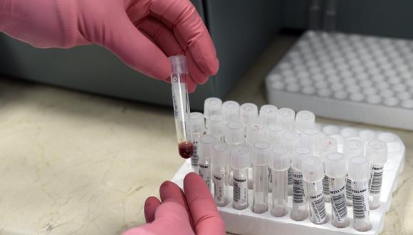 Imagen referencial en la que se ve a un doctora revisando una muestra de sangre para detectar si está contagiada con sida. AFP
