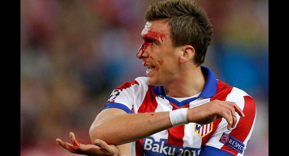 Mandzukic, herido: un codazo de Sergio Ramos le abrió la ceja  - 8