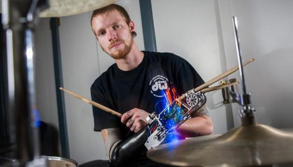 Prótesis robótica le entrega un tercer brazo a joven baterista