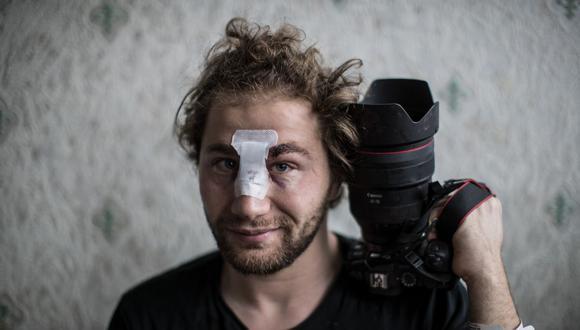 El fotógrafo independiente sirio de 24 años Ameer al Halbi, herido durante los enfrentamientos en una manifestación contra el proyecto de ley de seguridad global, posa con su cámara en su casa en París, el 29 de noviembre de 2020. (Foto de Sameer Al-DOUMY / AFP).