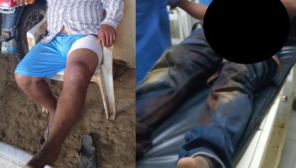El hombre se recupera de las heridas en su domicilio. (Foto: Difusión)
