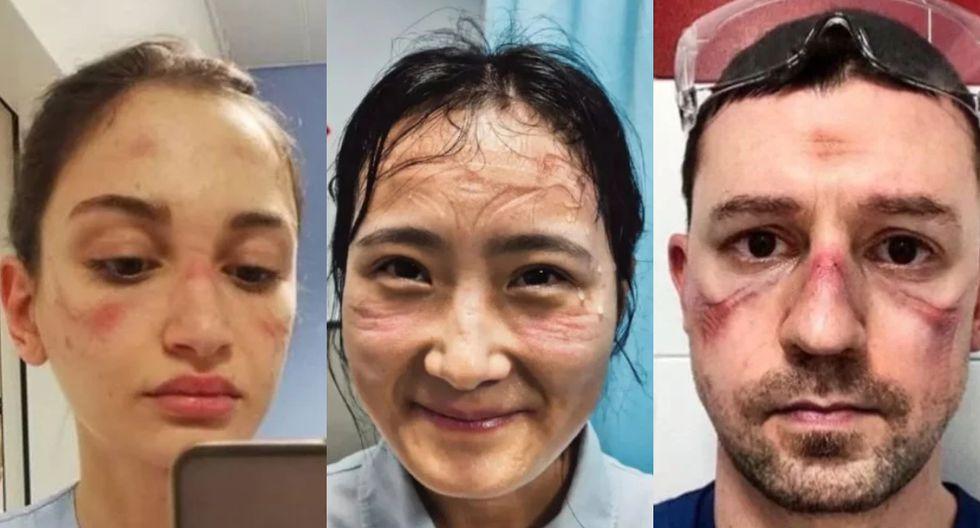 Así es como estas personas terminan luego de que trabajen cuidando a las personas con coronavirus más de 12 horas al día. (Foto: Facebook)