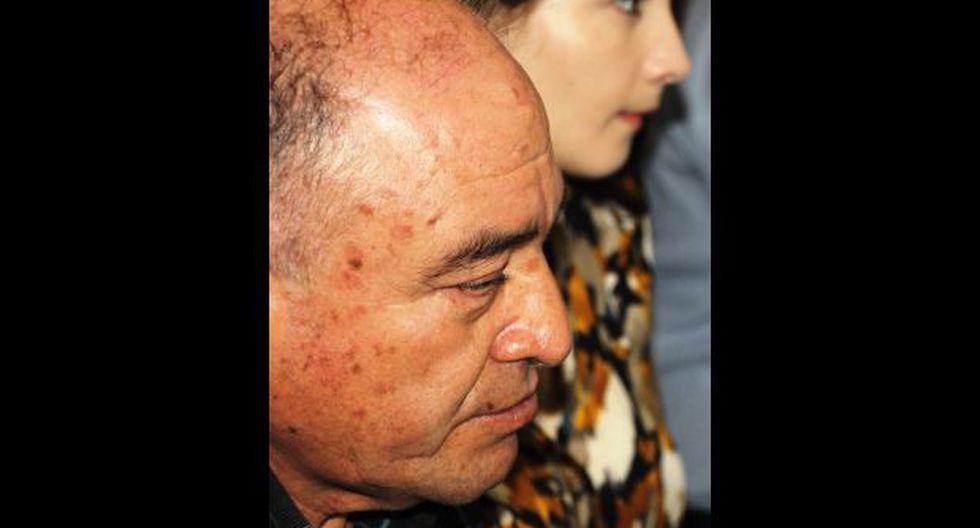 Lambayeque: detectan 10 lesiones precancerosas a Roberto Torres