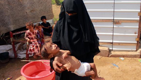 Hashem Mahmoud Atin, un niño yemení desplazado de diez meses que sufre de desnutrición aguda y que no puede ser llevado a un hospital para recibir tratamiento, es cargado por su madre en un campamento en Yemen. (Foto de ESSA AHMED / AFP).