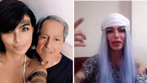 La modelo Angie Jibaja fue baleada por  Ricardo Márquez a inicios de abril. (Captura de pantalla / América TV).