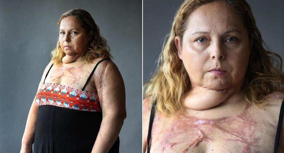 Argentina: Karina Abregú pasó por más de 50 operaciones tras un intento de feminicidio. Foto: La Nación de Argentina/GDA