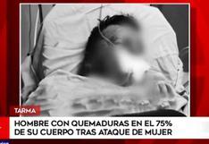 Junín: mujer roció con gasolina a su pareja porque este quiso terminar la relación