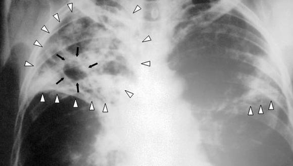 La tuberculosis se puede transmitir de manera congénita