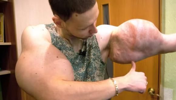 El conocido 'Popeye' ruso tuvo que recibir ayuda médica luego de inyectarse vaselina en los brazos. (Foto: Barcroft TV)