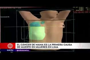 Lima: cáncer de mama es la primera causa de muerte en mujeres