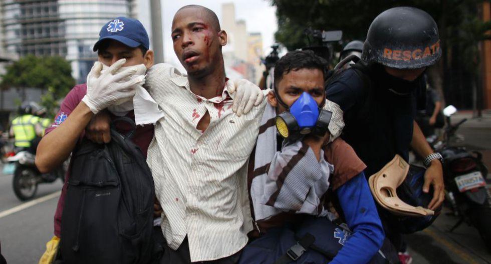 Venezuela: Duros enfrentamientos en calles de Caracas [FOTOS] - 31