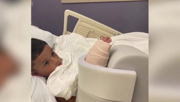 El niño, que fue atacado el jueves mientras nadaba en aguas bajas en una playa de Fort Lauderdale, al norte de Miami (Florida, Estados Unidos), debió ser operado de urgencia al día siguiente. (Captura de video / Telemundo).