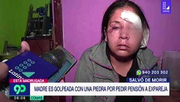 Madre de familia resulta desfigurada a pedradas por expareja tras exigirle manutención de hijo. (Captura: Latina)