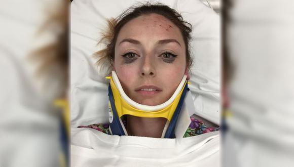 Así quedó  Shelby Pagan, una enfermera de 25 años, luego que su carro fuera chocado por un carro que iba a 90 por hora. (Instagram @coffeecatsandcusswords)
