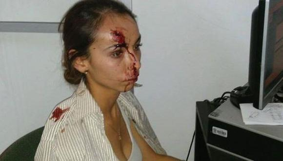 México: Buscan a policía que ordenó brutal golpiza a reportera