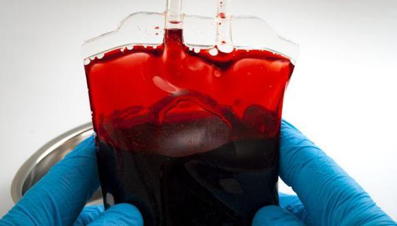 La HH provoca que el hierro se acumule de forma excesiva en el organismo. (Foto: Getty)