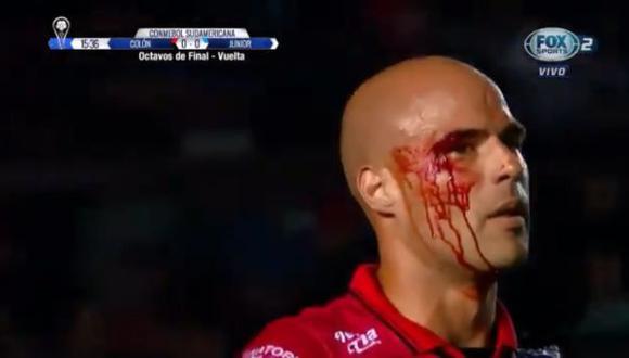 Matías Fritzler se rompió la ceja tras recibir un duro golpe | Foto: captura
