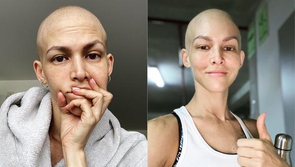 Anahí de Cárdenas reporta su actual estado de salud tras continuar con sus quimioterapias. (Foto: @anahidec)
