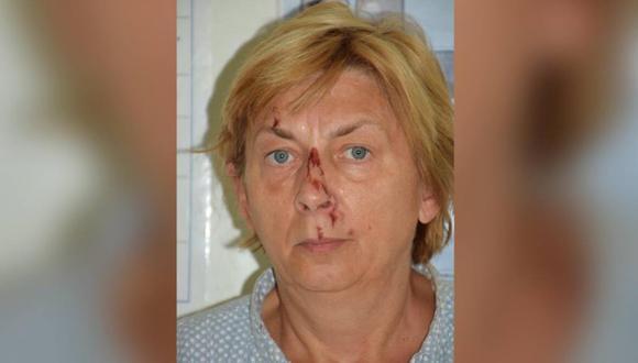 Croacia: hallan en una isla a una mujer lastimada que no recuerda su nombre ni cómo llegó allí.