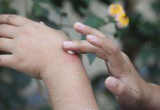 Verano: consejos para aliviar y prevenir las picaduras