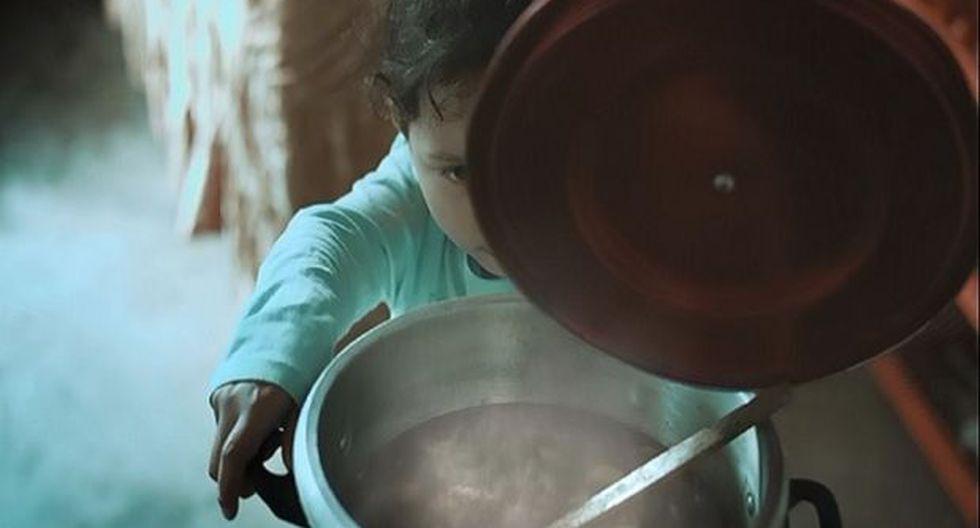 El 70% de niños quemados es por contacto con líquidos calientes