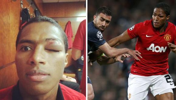 Valencia del Manchester United hizo un 'selfie' de su hematoma