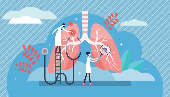 La mayoría de casos de neumonía se producen por el contagio de la bacteria del neumococo, a través de secreciones al estornudar, toser o incluso hablar. (Foto: Shutterstock)