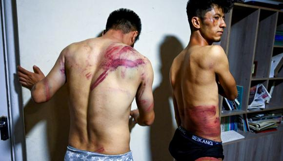 En esta imagen tomada el 8 de septiembre de 2021, los periodistas Nematullah Naqdi (izq.) y Taqi Daryabi muestran sus heridas producto de la paliza que recibieron de los talibanes. (WAKIL KOHSAR / AFP).