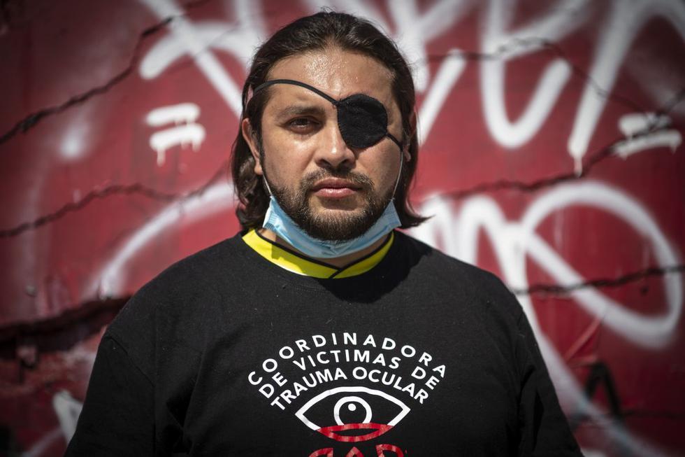 Felipe Riquelme, de 41 años, posa en el lugar donde fue alcanzado en el ojo por un proyectil de gas lacrimógeno disparado por la policía de Chile mientras participaba en una protesta. (Foto de Martin BERNETTI / AFP).