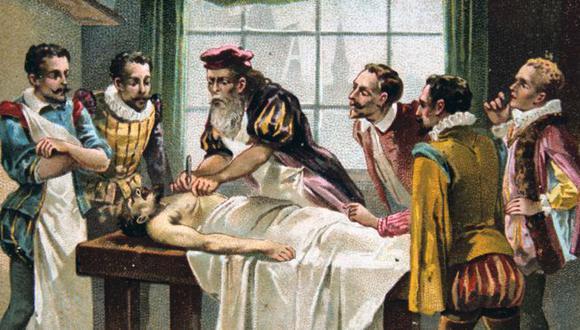 El cirujano militar francés del siglo XVI Ambroise Pare es considerado por muchos el padre de la cirugía moderna. (Foto: Getty)