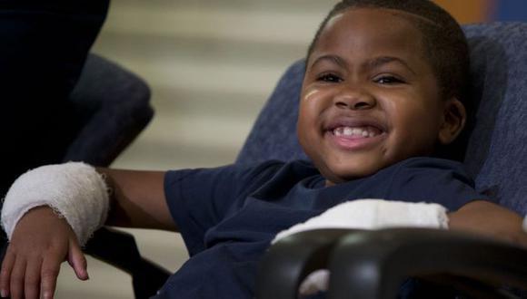 Niño de ocho años recibe un trasplante de manos