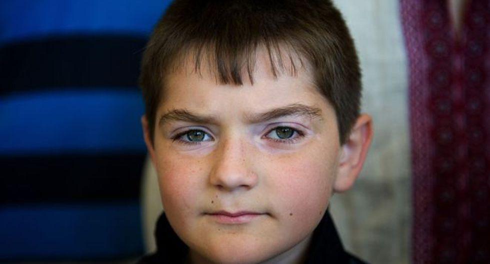 Algunos niños, como Dennis (en la imagen), llegaron al complejo de Tarará en Cuba para recibir tratamiento para sus dolencias médicas tras la catástrofe de Chernóbil.