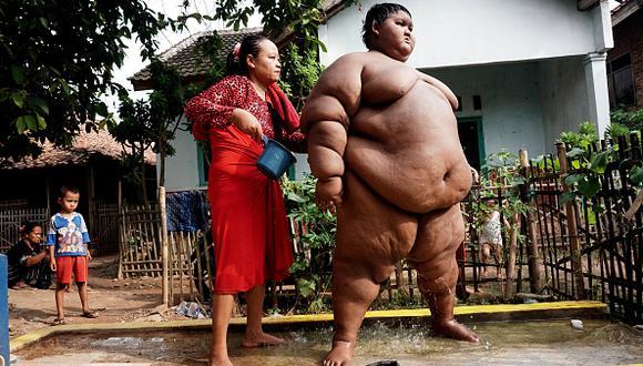 A sus cortos 9 años, Arya Permana se hizo conocido en todo Indonesia por pesar casi 200 kg. (Foto: Getty Images)
