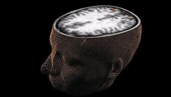 ¿Cómo afecta al cerebro la bipolaridad?