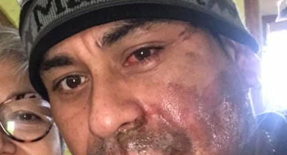 Mahud Villalaz, quien estaba camino un restaurante, dijo que había comenzado a alejarse cuando el hombre repentinamente le arrojó el ácido en la cara. (Facebook: Sivily Maritza Paz).