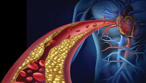 ¿Qué es la enfermedad obstructiva de las Arterias Coronarias y cómo prevenirlo?   Foto: Adobe Stock