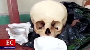 Sujeto intentaba vender un cráneo humano en víspera de Halloween